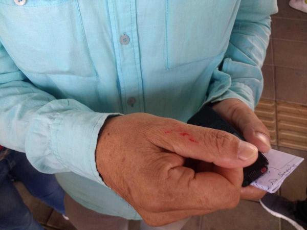 Incidente de Ricardo Pérez