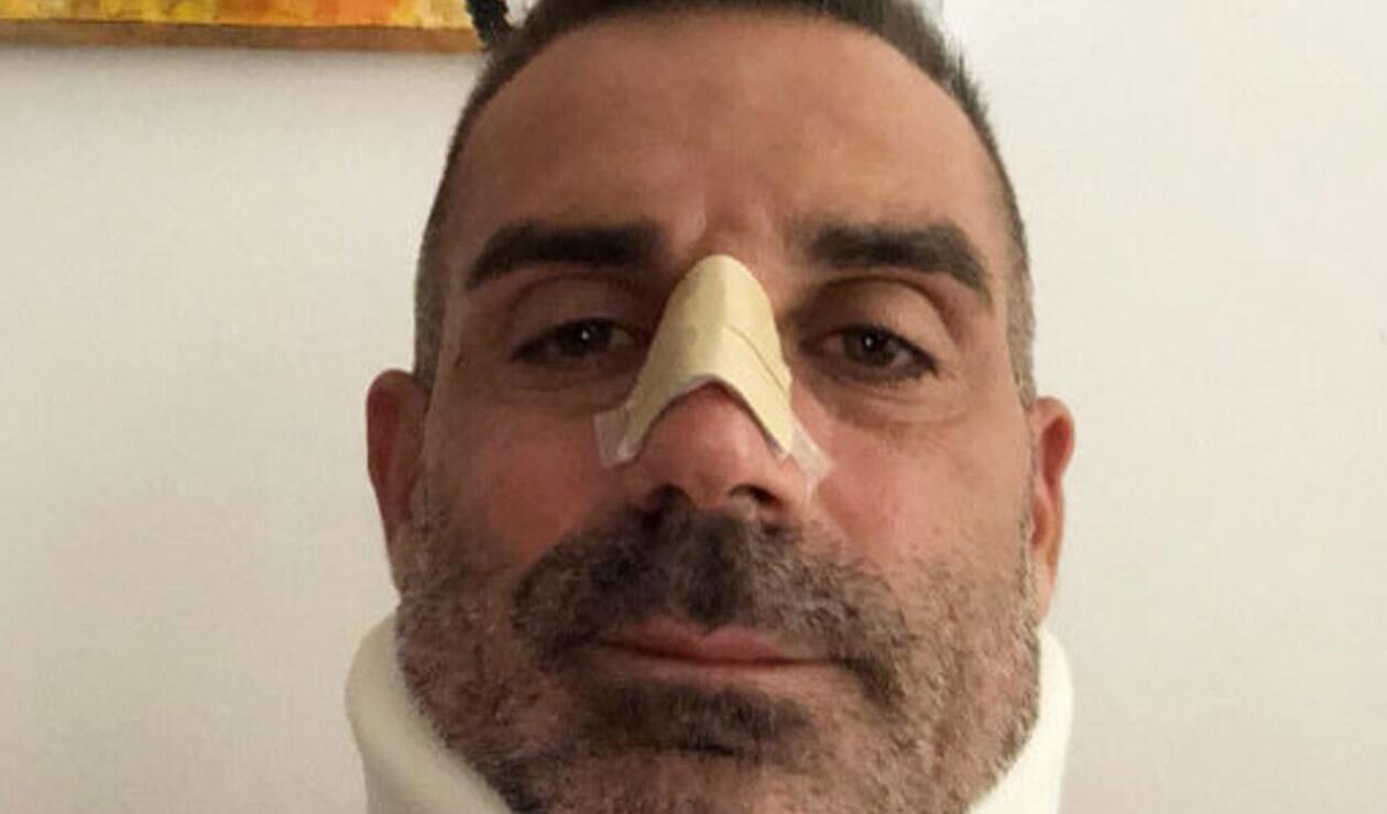 Stefano Sorrentino, arquero del Chievo