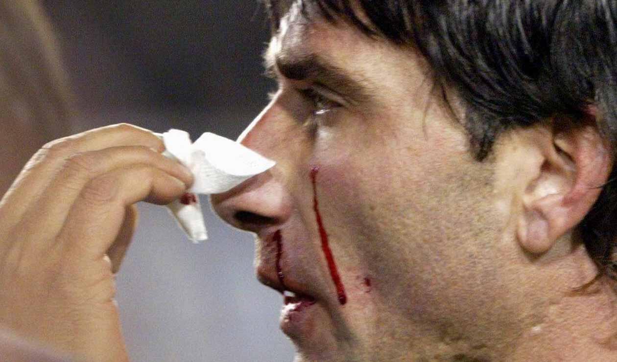 Roberto Abbondanzieri sufrió un golpe de Marcelo Gallardo -semifinal Libertadores 2004
